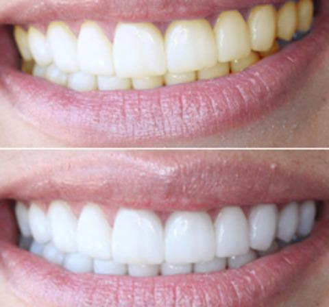 Teeth Whitening Pen Feedback Reviews Price Make Your Smile